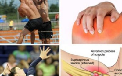 Save The Volleyball Shoulder