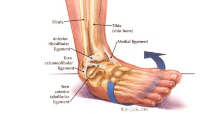 Volleyball Ankle Sprains