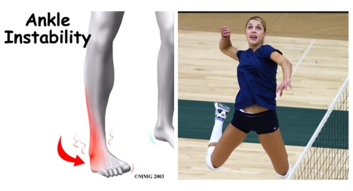Volleyball Ankle Stability Exercises